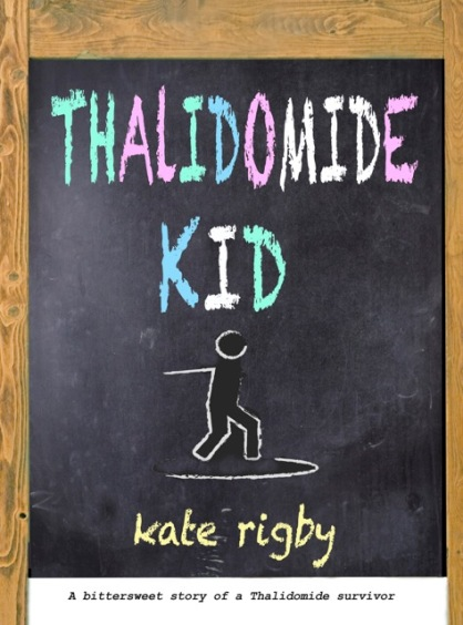 thalidomide-kid-sept-18.jpeg